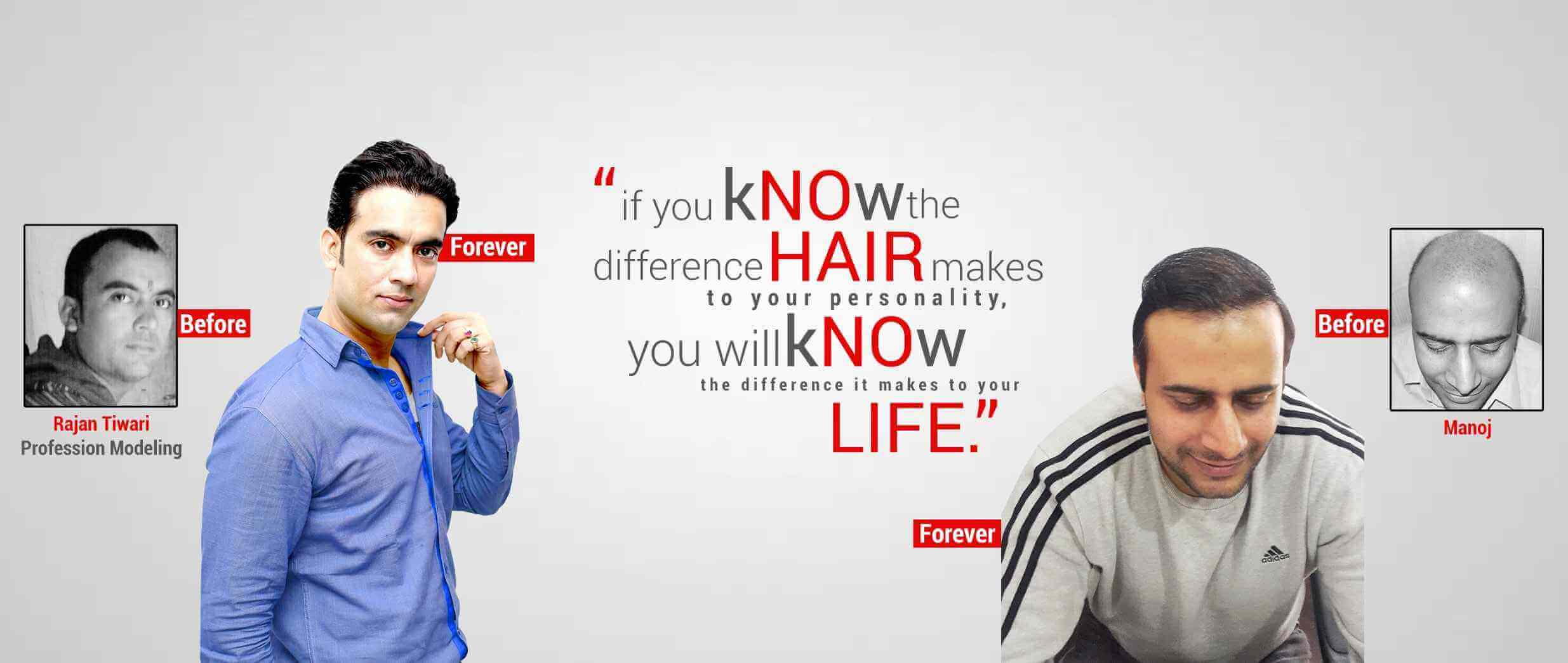 Best Hair Transplant in Indore
